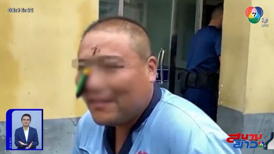 ภาพเป็นข่าว : หวาดเสียว! นักตกปลาเหวี่ยงเบ็ดพลาด ตาเบ็ดเกี่ยวหน้าผากตัวเอง