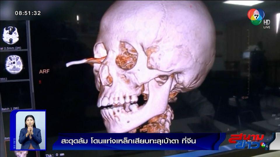 ภาพเป็นข่าว : สุดหวาดเสียว! เด็กเคราะห์ร้ายสะดุดล้ม โดนแท่งเหล็กเสียบทะลุเบ้าตา