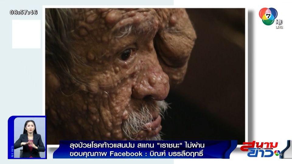 """ภาพเป็นข่าว : ลุงป่วยโรคท้าวแสนปม สแกน """"เราชนะ"""" ไม่ผ่าน"""
