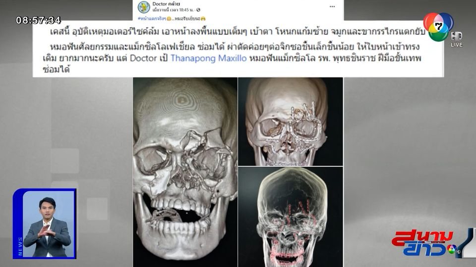 ภาพเป็นข่าว : น่ากลัวสุด ๆ หมอเผยภาพคนขี่รถ จยย.ล้มหน้ากระแทกพื้น ใบหน้าแตกยับ