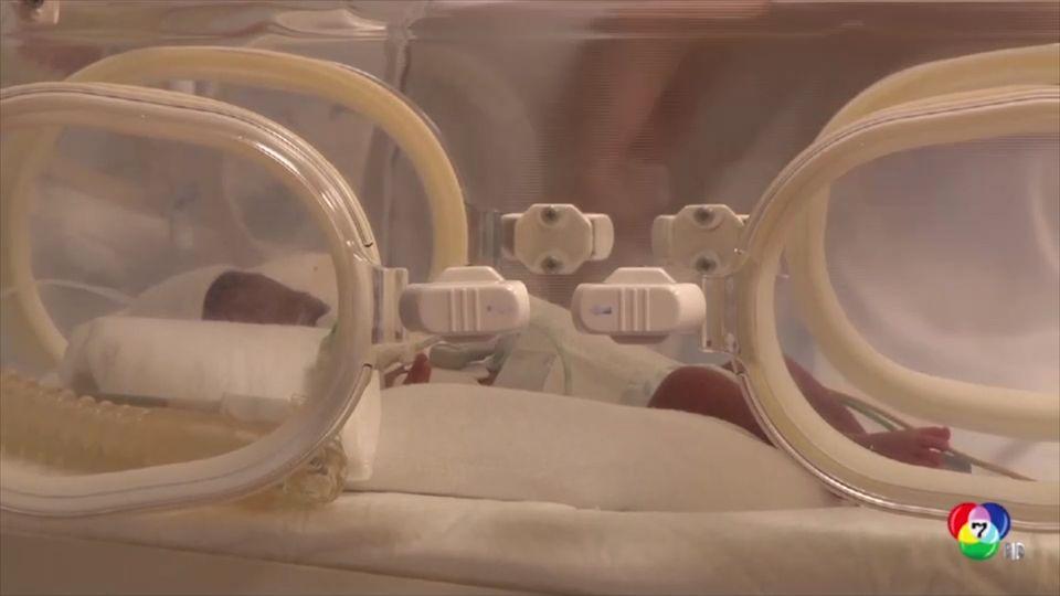หญิงชาวมาลีคลอดทารกแฝด 9 ในโมร็อกโก