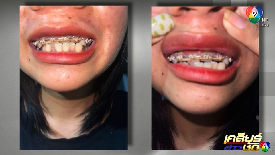 เตือนภัย! วัยรุ่นจัดฟัน ฟันเก-ล้มหมดปาก