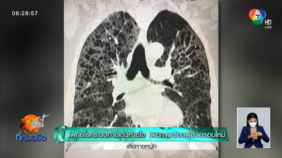 แพทย์โรคระบบทางเดินหายใจ เผยภาพปอดผู้ป่วยรอบใหม่ เสียหายหนัก
