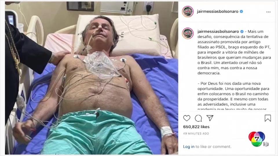 ส่งผู้นำบราซิลเข้ารพ. หลังสะอึกไม่หยุดกว่า 10 วัน