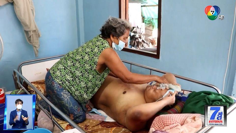 ภานุรัจน์ฟอร์ไลฟ์ : แม่วัยชรา...สู้ชีวิต! ดูแลลูกพิการ จ.กำแพงเพชร