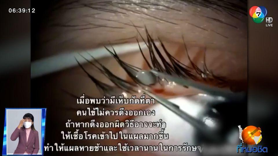 สะพรึง เห็บเกาะเปลือกตาเด็กหญิงอายุ 13 ปี แพทย์เตือนอย่าดึงเอง เสี่ยงติดเชื้อ
