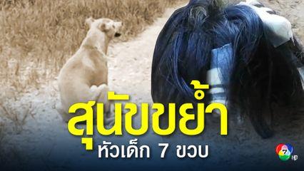 สุนัขขย้ำหัวเด็ก 7 ขวบ บาดเจ็บสาหัส แต่เจ้าของสุนัขไม่รับผิดชอบ