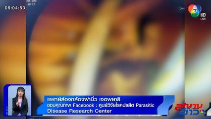 ภาพเป็นข่าว : ขนลุก! แพทย์ส่องกล้องผ่านิ่ว ต้องผงะเมื่อเจอพยาธิไส้เดือนตัวใหญ่ยาว