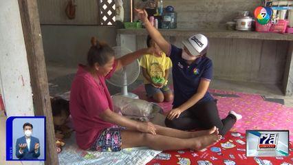 ภานุรัจน์ฟอร์ไลฟ์ : หญิงป่วยโรคหนังแข็ง รันทด เลี้ยงหลาน 2 คน จ.ชลบุรี