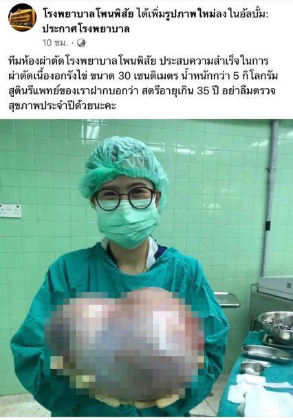 ฮือฮา ทีมแพทย์ รพ.โพนพิสัย ผ่าตัดสำเร็จ เนื้องอกรังไข่ขนาดใหญ่ หนักกว่า 5 กก.